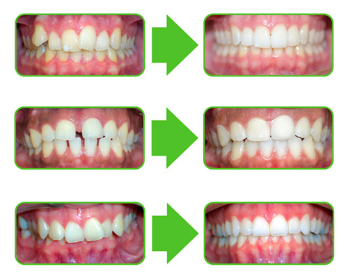 Clear Correct - Invisalign - Devon Neighbourhood Dental ...